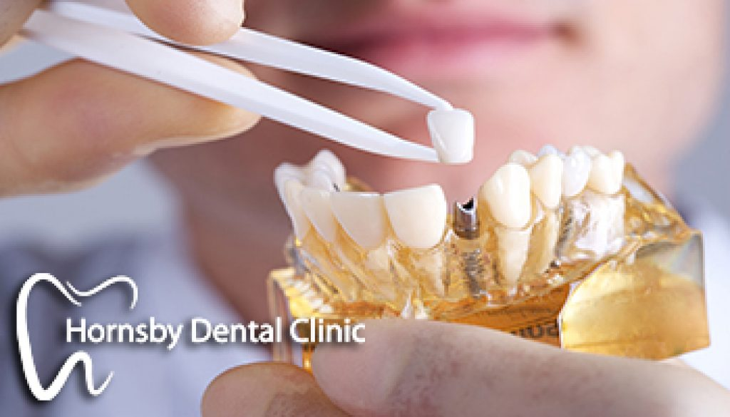 Dental_Implant_Sydney 1
