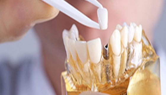 Facebook Dental Crowns Specials